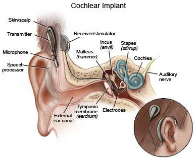 cochlear implant surgery in India at low cost