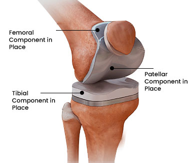 cost of knee replacement in India