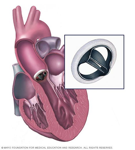 Heart valve replacement – mechanical valve