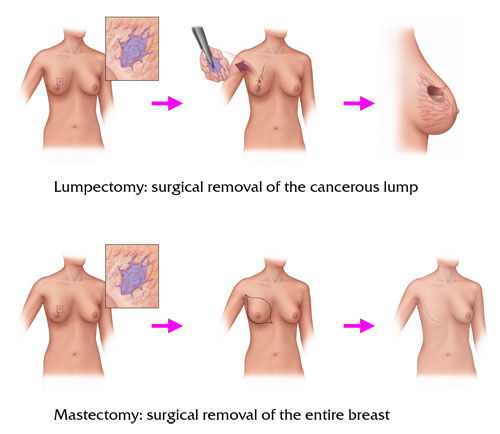 Breast cancer surgery options