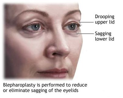 Blepharoplasty in India at low cost | IndiCure