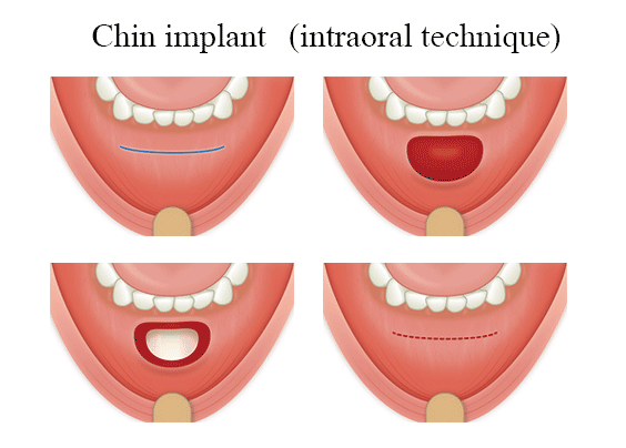 chin-implant-in-india