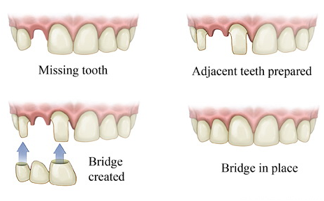 cost-of-dental-bridge-in-India