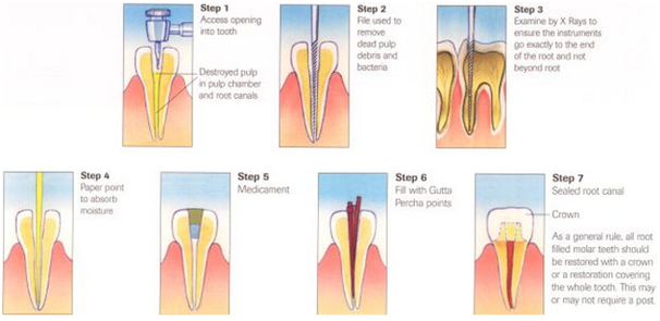 cost-of-dental-crowns-in-india
