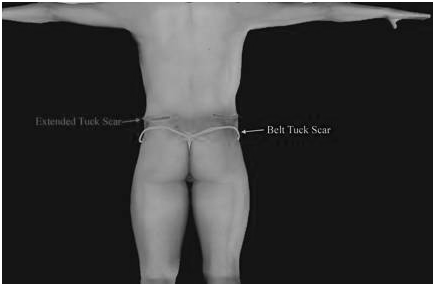 extended-tummy-tuck-and-belt-lipectomy