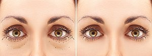 eyelid-surgery-cost-in-india