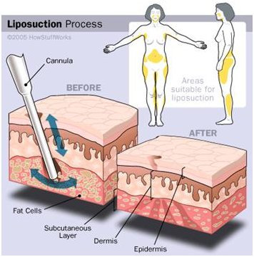 liposuction-surgery-in-india