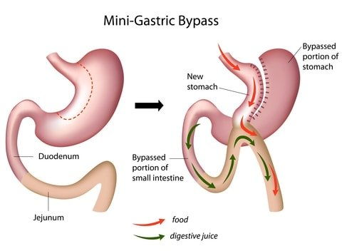 Mini Gastric Bypass in India