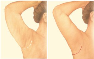 Minimal incision - arm lift