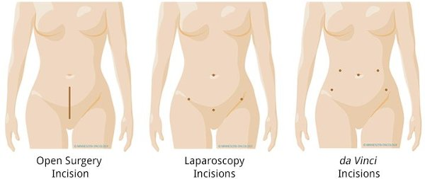fibroid surgery in India