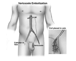 varicocele embolization in India